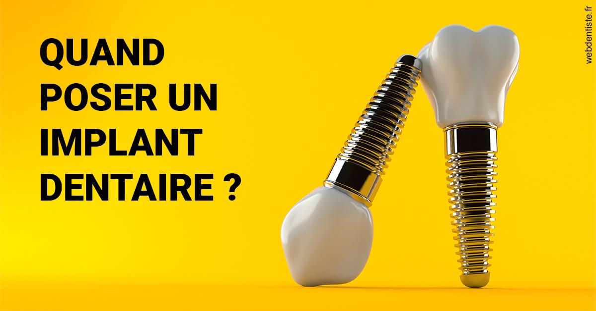 https://www.cabinet-dentaire-lorquet-deliege.be/Les implants 2