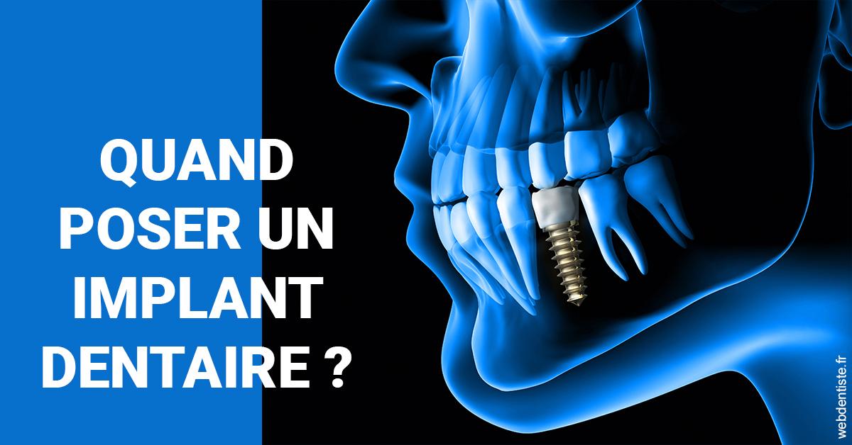 https://www.cabinet-dentaire-lorquet-deliege.be/Les implants 1